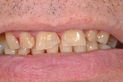 dentiste batselaere cabinet dentaire esth tique blanchiment facette waterloo belgique. Black Bedroom Furniture Sets. Home Design Ideas